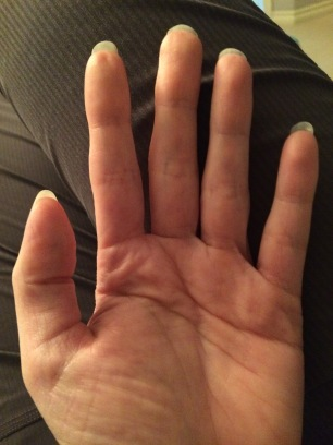 Left hand - skin is reasonably soft and smooth.